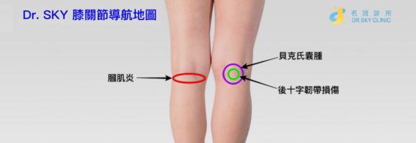膝關節痛位置圖 膝蓋後側