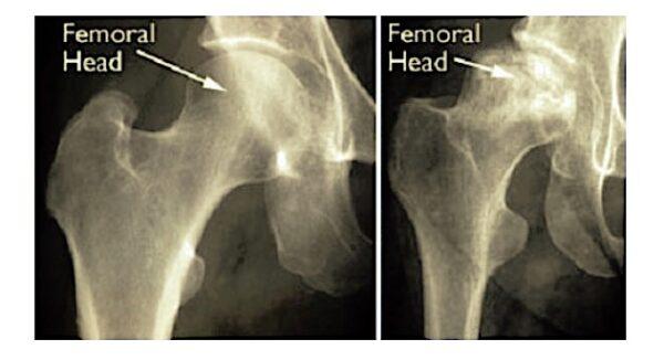 髖關節X光片